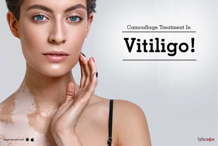 Camouflage Treatment In Vitiligo By