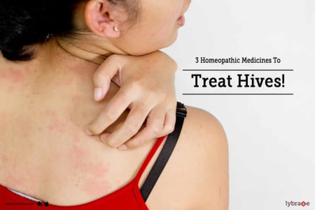 3 Homeopathic Medicines To Treat Hives! - By Dr  Neha S Vasishth