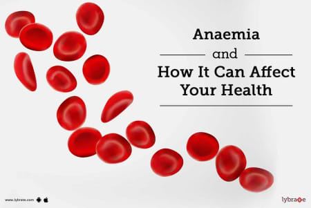 Megaloblastic Anemia: Treatment, Procedure, Cost, Recovery