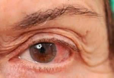 Glaucoma - Homeopathic Treatment! - By Dr  Swarup Kumar