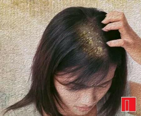 Seborrheic Dermatitis - Know More About It! - By Dr  Swarup Kumar