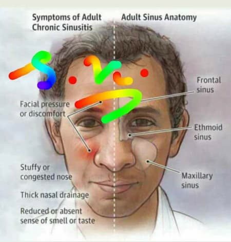 Chronic Sinusitis - By Dr  Swarup Kumar Ghosh | Lybrate