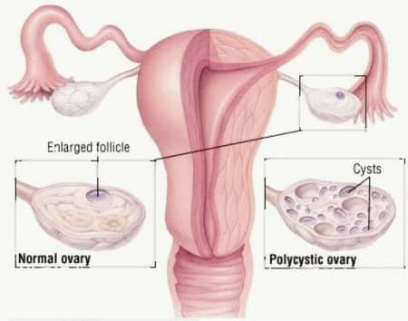 Ovarian Cyst - Its Treatment With Homeopathy! - By Dr  Swarup Kumar