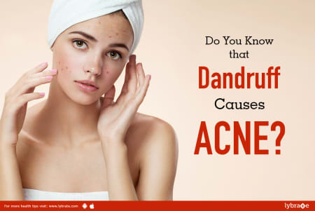 Do You Know that Dandruff Causes ACNE? - By Dr  Rajeshwari K A Bhat