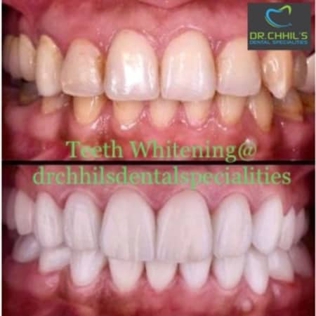 Teeth Whitening Process Cost Side Effects Benefits Of Teeth