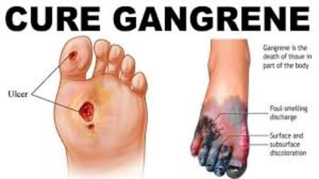 Gangrene - Cause, Symptoms, Diagoniss & Treatment - By Dr. Radhika A (Md) |  Lybrate