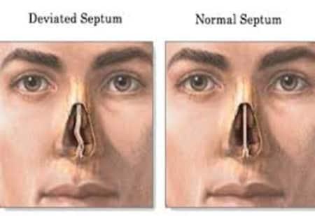Deviated Nasal Septum By Dr Radhika A Md Lybrate