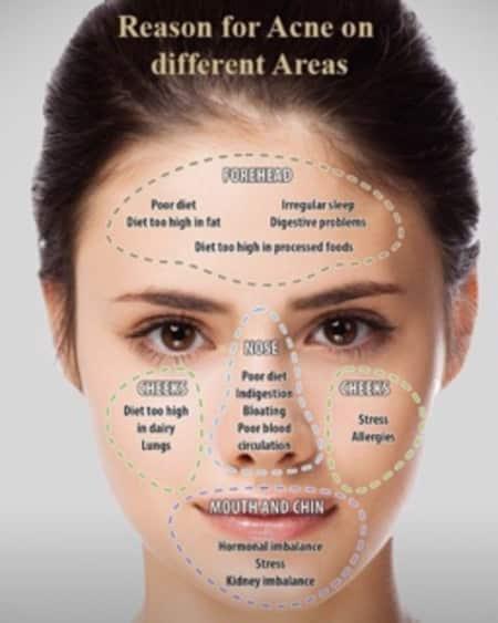 dieta anti acne rosacea