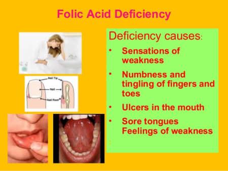 Folic Acid Side Effects Anxiety - Etuttor