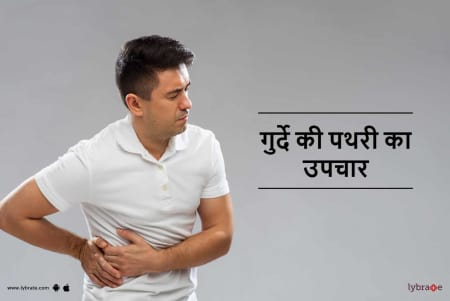 Kidney Stone Treatment In Hindi À¤— À¤° À¤¦ À¤• À¤ªà¤¥à¤° À¤• À¤‰à¤ªà¤š À¤° By Dt Radhika Lybrate