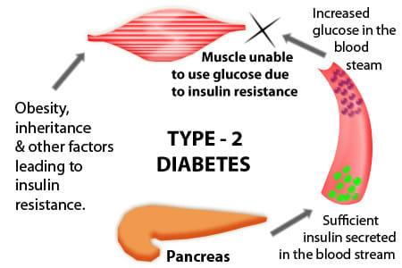 diabetes wikipedia