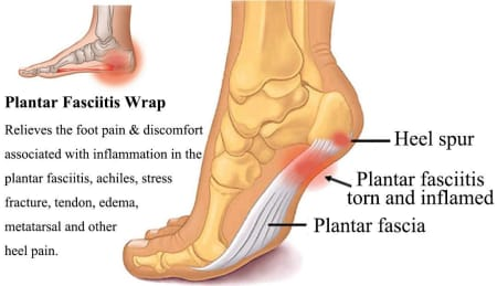Heel Pain - Causes, Exercises, Home