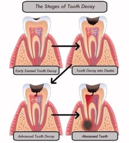 Early Stages Of Tooth Decay Are Painless! - By Dr  Manasvi