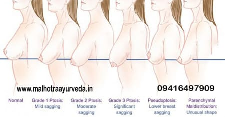 54c92ab67c9b6 How To Prevent Sagging of Breasts  - By Dr. Malhotra Ayurveda ...
