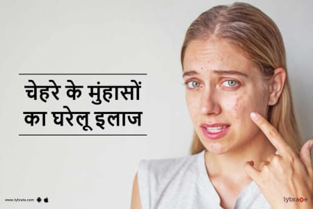 Pimples On Face Treatment At Home In Hindi च हर क
