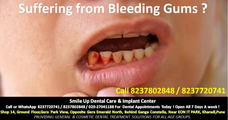 Are Your Teeth Bleeding? Take It Seriously! - By Dr  Ratnika