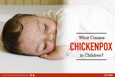 What Causes Chickenpox In Children By Dr Gaurav Nigam Lybrate