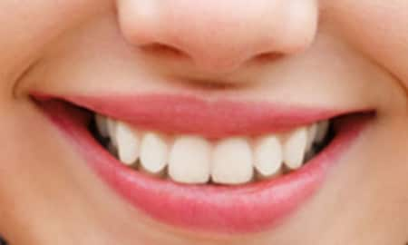 Homeopathic Treatment For Periodontitis! - By Dr  Swarup Kumar Ghosh
