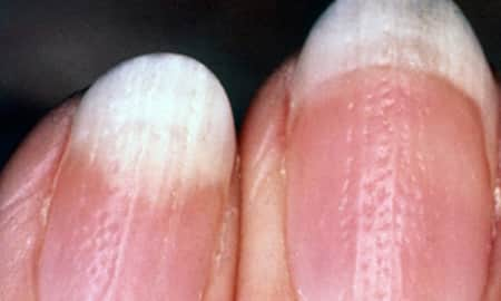 Nail Psoriasis & its Management - By Dr. Nitin Hundre | Lybrate