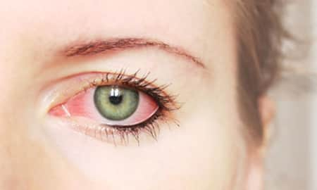 Chalazion Questions & Answers, What is Chalazion? | Lybrate