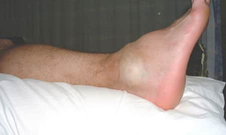 Swelling of Legs Questions & Answers, What is Swelling of