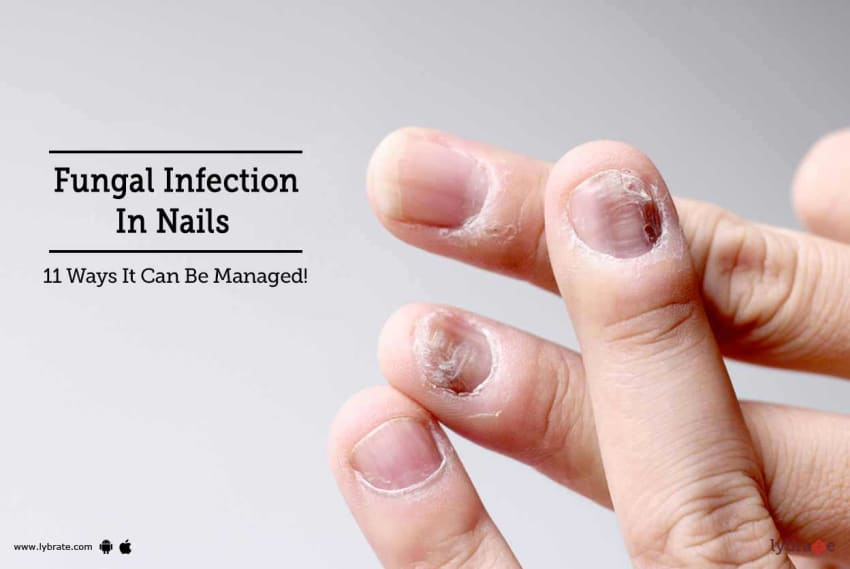 Fungal Infection In Nails - 11 Ways It Can Be Managed! - By Dr ...