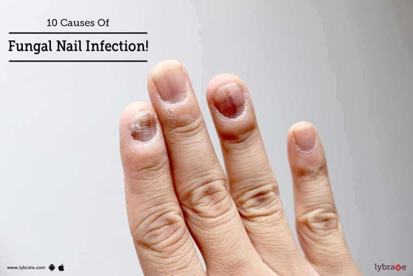 10 Causes Of Fungal Nail Infection! - By Skinovate Laser & Cosmetic ...