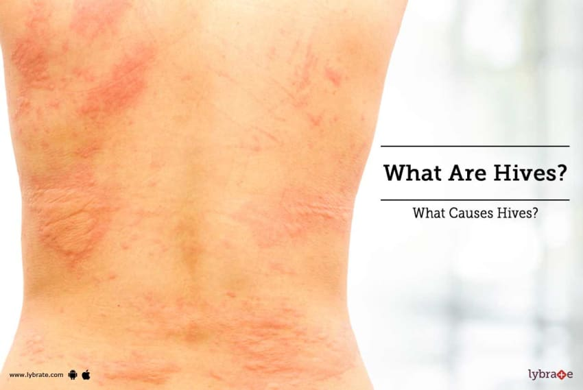 Can Homeopathy Treat Hives? - By Dr  Pulak Mukherjee | Lybrate