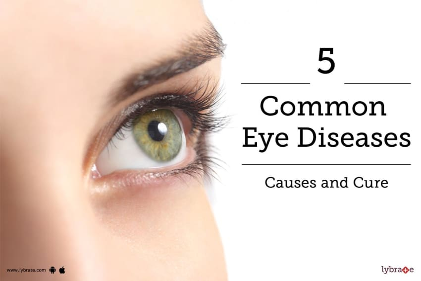 5 common eye diseases causes and cure by bharti eye hospitals