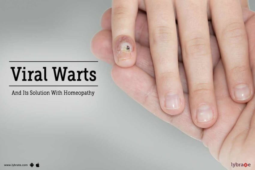 Ayurveda and Genital Warts - By Dr  Gokulan Bg | Lybrate