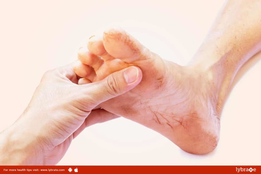 Heel Pain (Plantar Fasciitis) Relieved By Homeopathy - By Dr ...