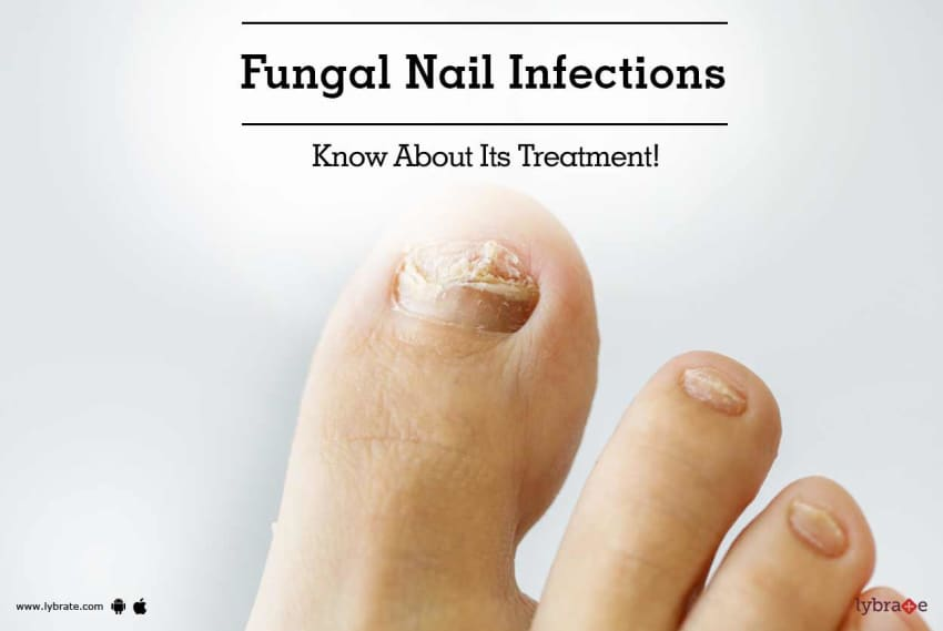 Fungal Nail Infections - Know About Its Treatment! - By Dr. Deepak ...