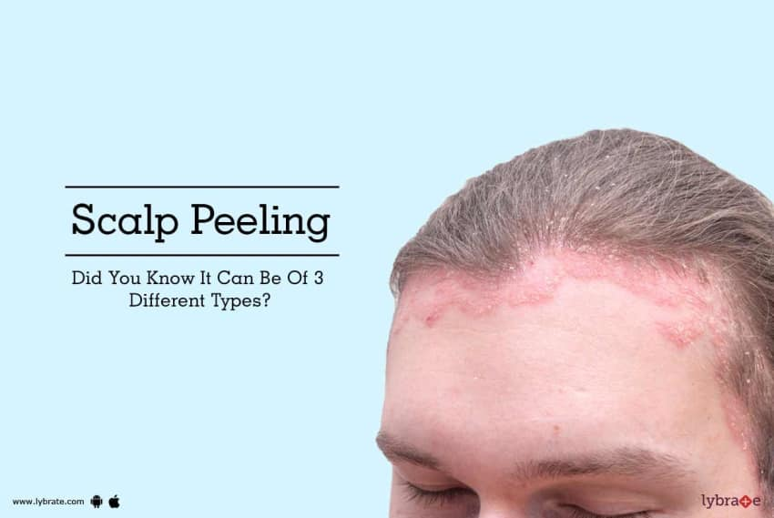 Scalp Peeling Did You Know It Can Be Of 3 Different Types By