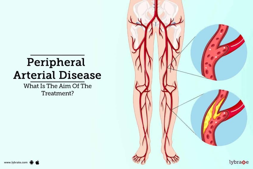 Peripheral Arterial Disease - What Is The Aim Of The Treatment? - By ...