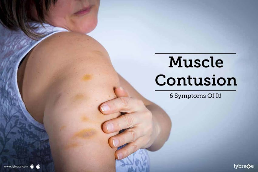 muscle contusion 6 symptoms of it by dr atul mishra lybrate