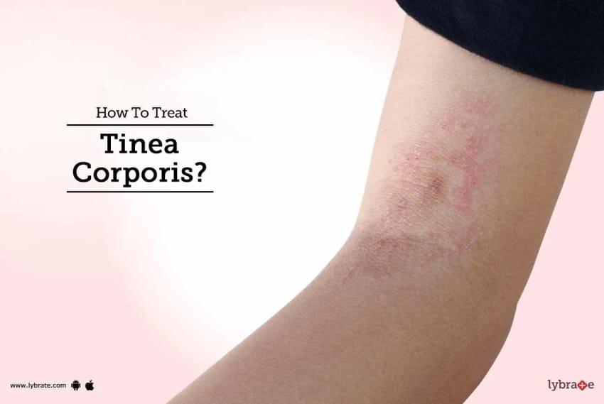 How To Treat Tinea Corporis? - By Dr  Rahul Balmiki | Lybrate