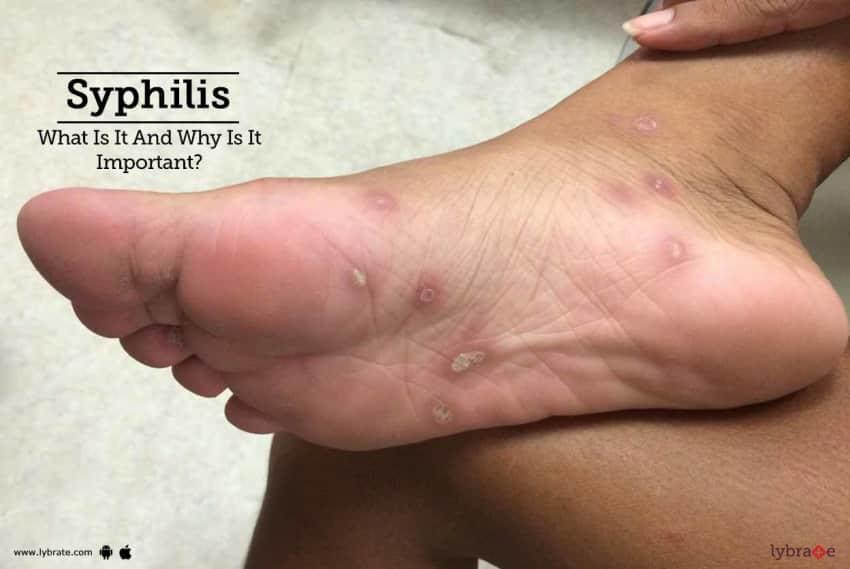 Symptoms latent stage syphilis