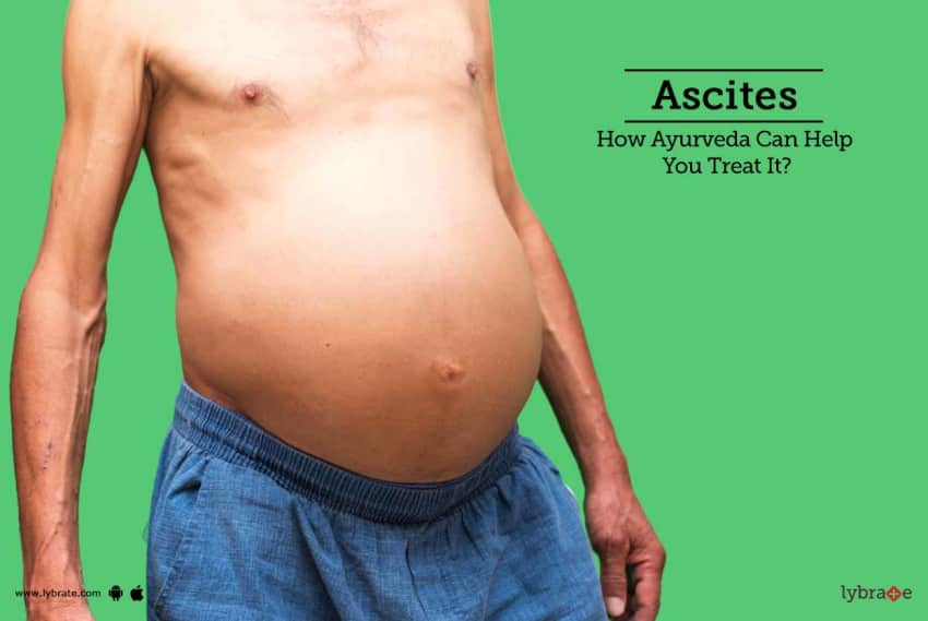 ascites how ayurveda can help you treat it by dr srinivasa