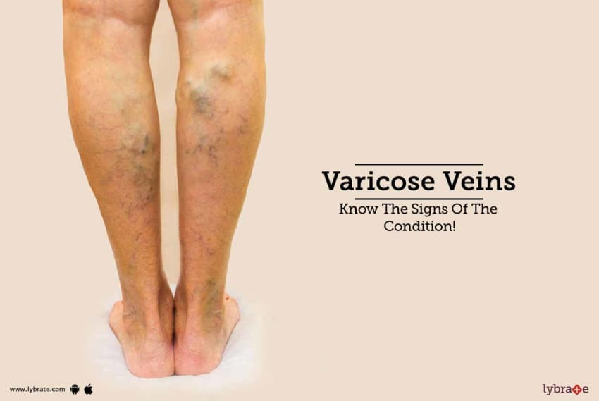 10 Effective Home Remedies For Veins! - By Dr  A A Khan | Lybrate