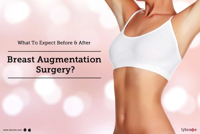 Tips before breast augmentation surgery