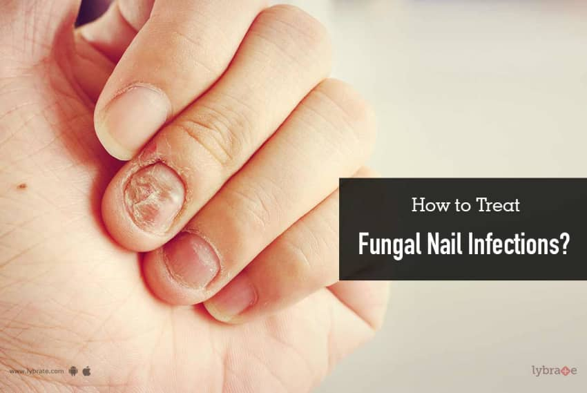 How to Treat Fungal Nail Infections? - By Dr. Akhilendra Singh   Lybrate
