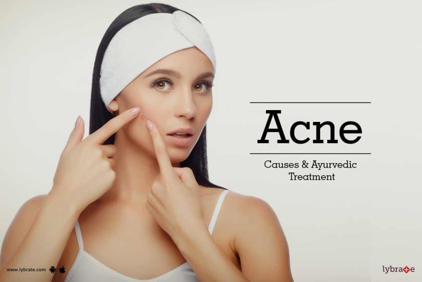 Ayurvedic acne treatment in bangalore dating