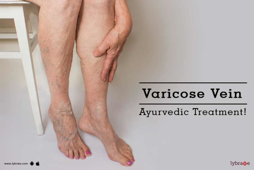 Ayurvedic Treatment Options For Varicose Veins - By Dr  Pratik