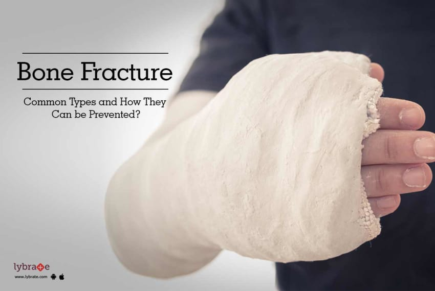 Bone Fracture Common Types And How They Can Be Prevented By Dr