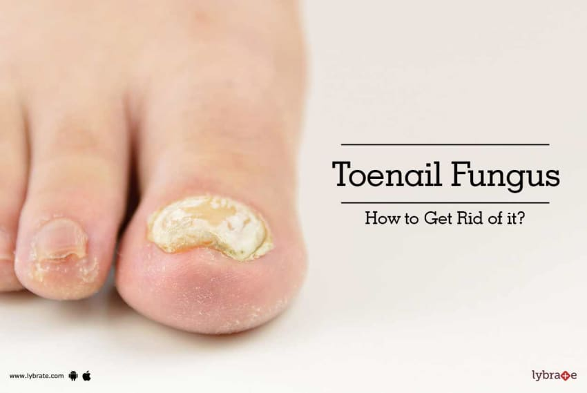 Tips & Advice For Toenail From Top Doctors | Lybrate