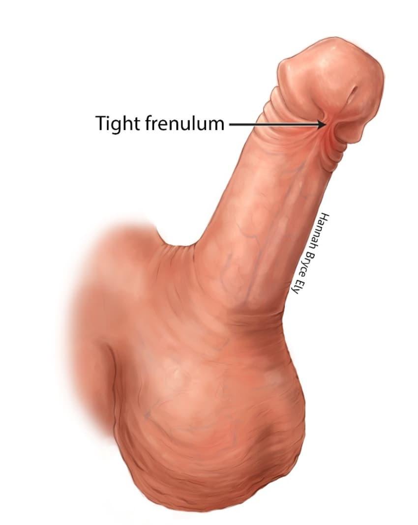 penis Tears in foreskin the
