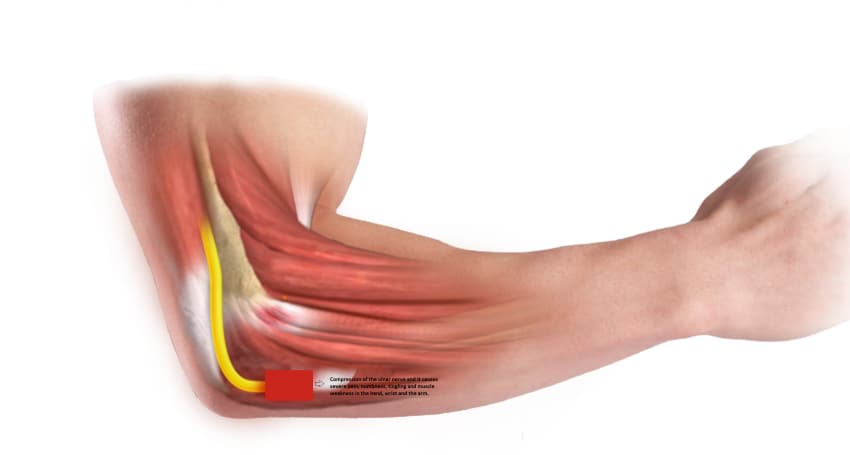 Cubital Tunnel Syndrome - By Dr. Mohit Madan | Lybrate