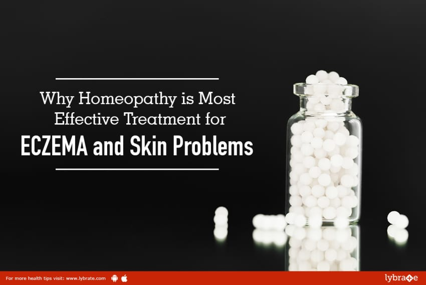 Why Homeopathy Is Most Effective Treatment For Eczema And Skin