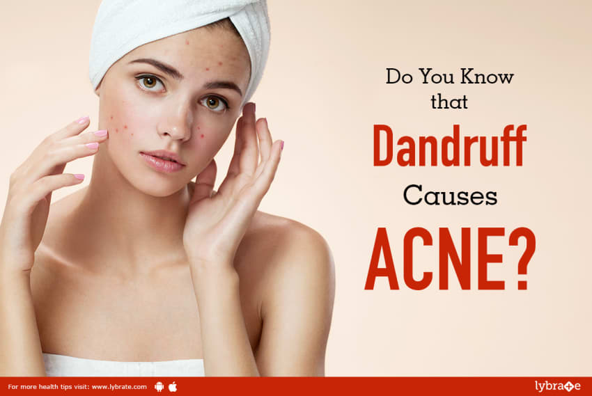 Do You Know That Dandruff Causes Acne By Dr Rajeshwari Ka Bhat