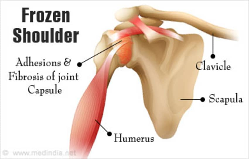 Frozen Shoulder - How To Manage? - By Dr. Anurag Aggarwal | Lybrate